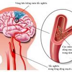 Những vị thuốc quý cho bệnh nhân thiểu năng tuần hoàn não